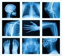 Рентген коленного сустава в красноярске - цена орнитогалум бальзам для суставов купить